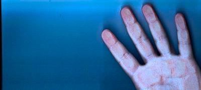 illustration d'une main déshydratée